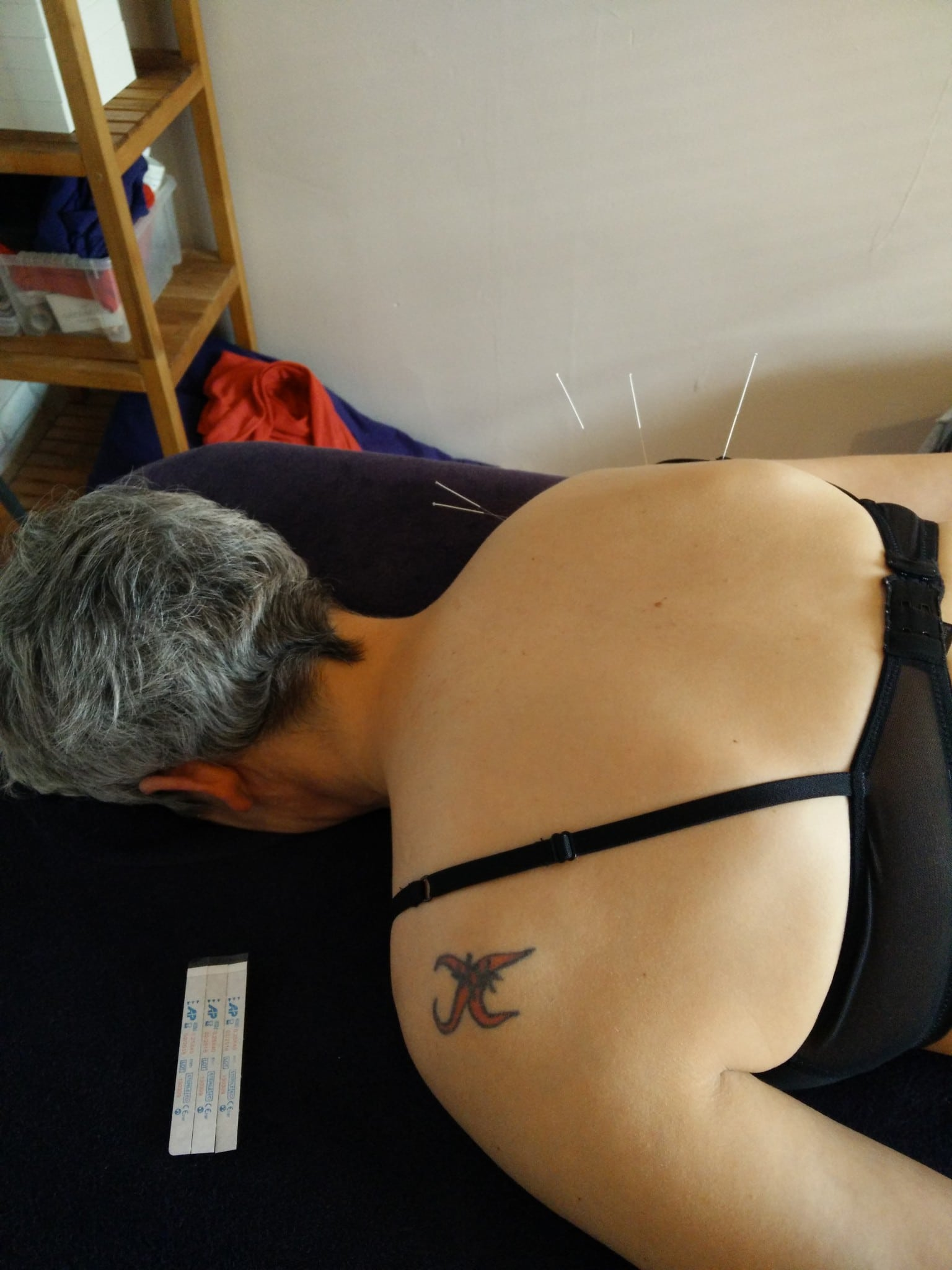 Mobile acupuncture in herts